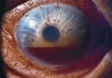 What Is Hyphema? - American Academy of Ophthalmology
